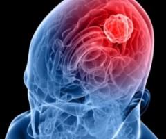 meningite celebro_spinale