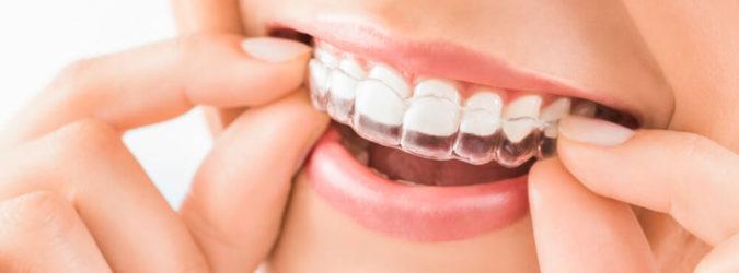 bite per denti