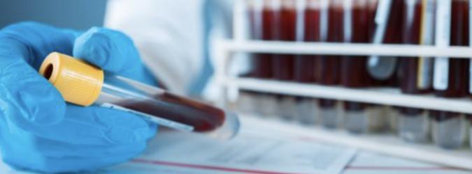 Test sierologici Marche