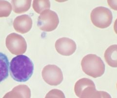 Tumori del sangue